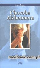 Definicja Choroba Alzheimera - poradnik słownik