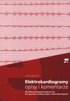 Definicja Elektrokardiogramy - opisy i słownik