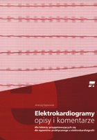 Elektrokardiogramy - opisy i komentarze