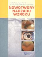 Definicja Nowotwory narządu wzroku słownik