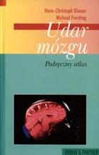 Definicja Udar mózgu - podręczny atlas słownik