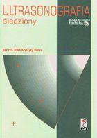 Definicja Ultrasonografia śledziony słownik