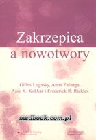 Definicja Zakrzepica a nowotwory słownik